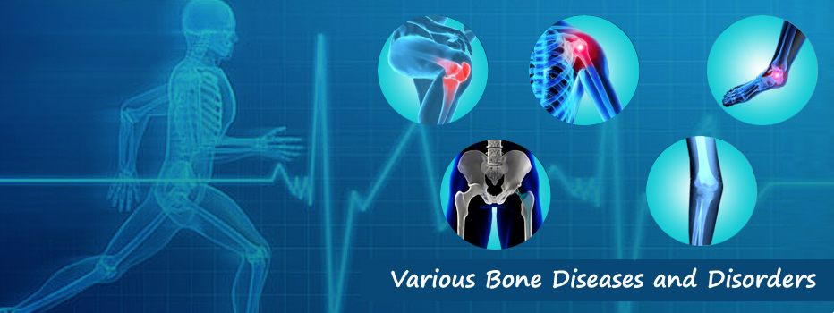 Various Bone Diseases and Disorders