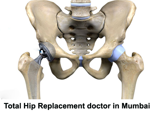 Total Hip Replacement Doctor Mumbai