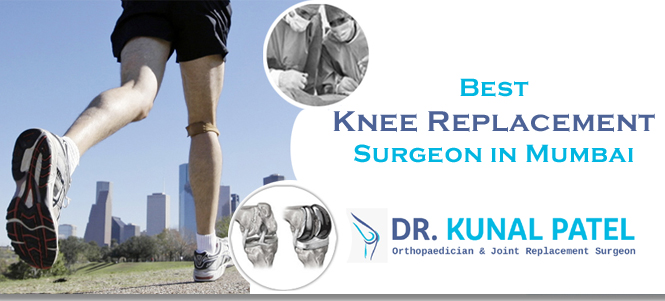 Best Knee replacement surgeon Mumbai