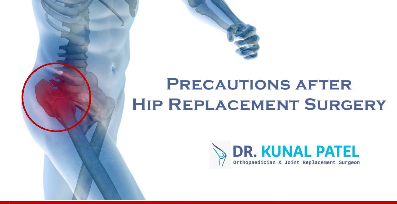 Precautions After Hip Replacement Surgery By Dr Kunal