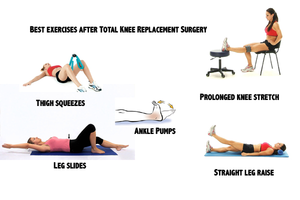 Best exercises after Total Knee Replacement Surgery